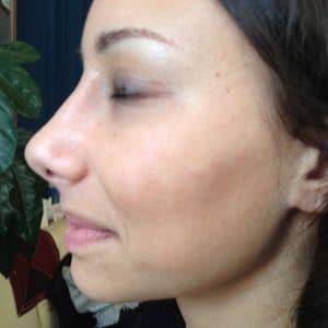 après lifting du nez opérationn esthétique rhinoplastie
