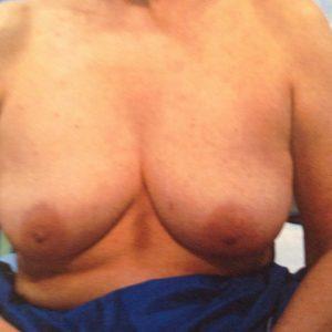 avant réduction mammaires chirurgie esthétique