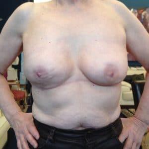 après réduction mammaires