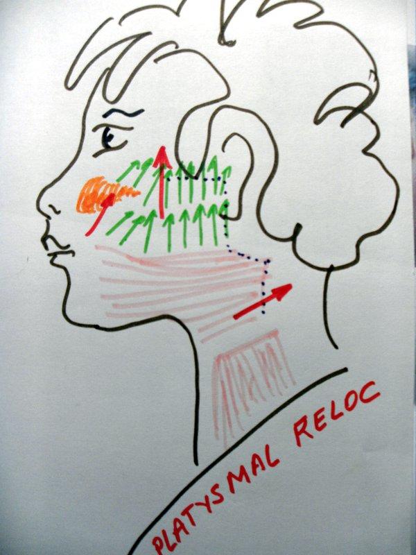 dessin de pré chirurgie esthétique visage