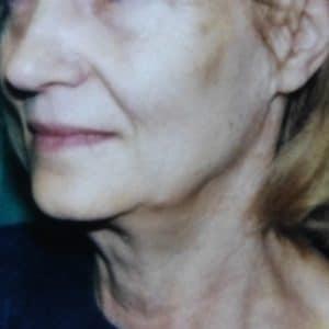 avant chirurgie esthétique du visage