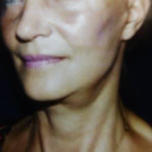 après chirurgie esthétique du visage