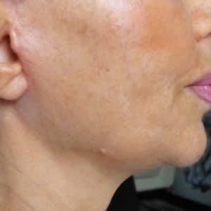 lifting du visage après opération