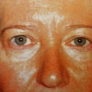 botox chirurgie esthétique