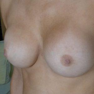 après augmentation mammaire