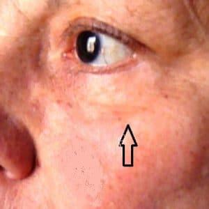 chirurgie des paupière esthétique