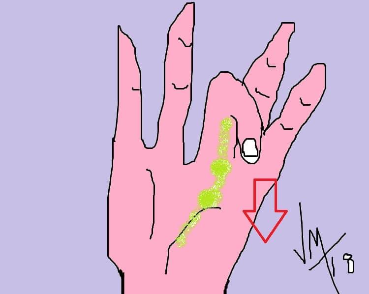 opération de la main doight