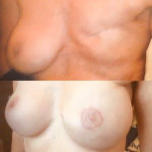 reconstruction du sein gauche après cancer du sein,en 2 temps