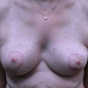 résultat de réduction mammaire après 1 an, technique vladimir mitz