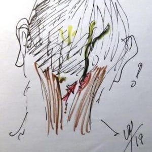 migraine par compression du nerf g occipital
