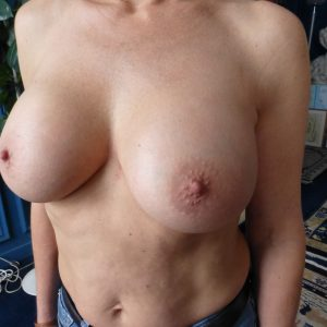 10-ans-après-implant