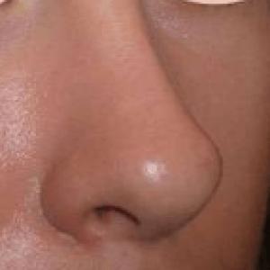 2 nez réparé après retouche vladsimir mitz
