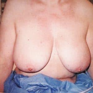 ptose mammaire avant opération vladimir mitz
