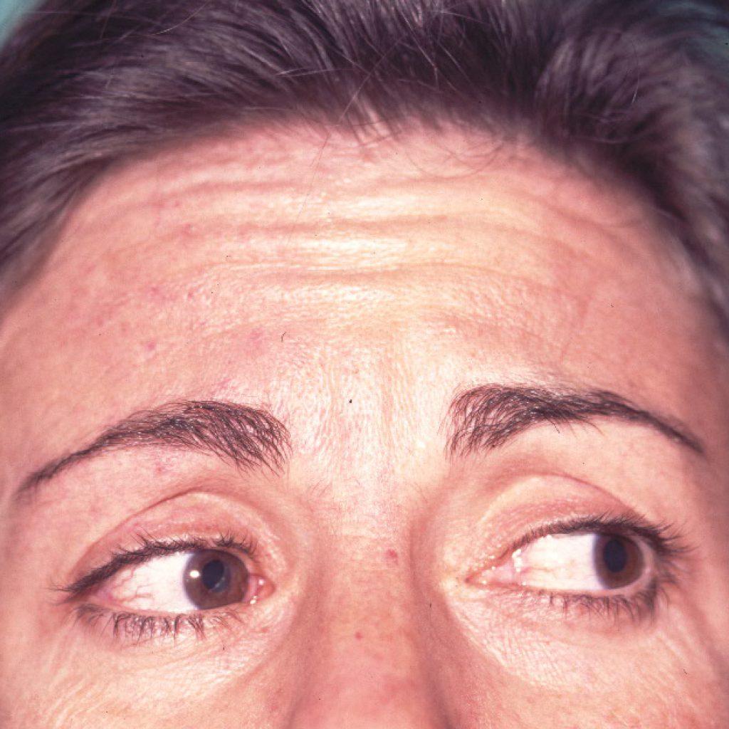 avant lifting frontal endoscopique