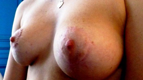 seins tubéreux après opération vladimir mtz