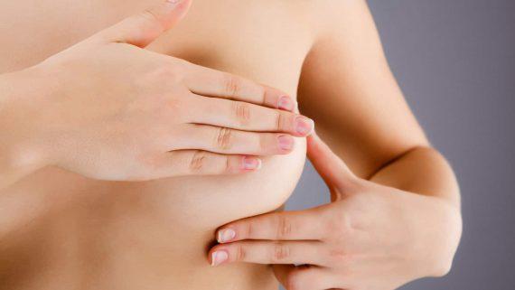 Plasties mammaires (suites opératoires)