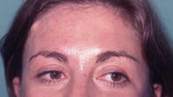 botox chirurgie esthétique du visage