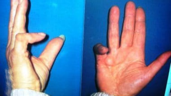 Recul de la pulpe dans les crochets invétérésde doigts