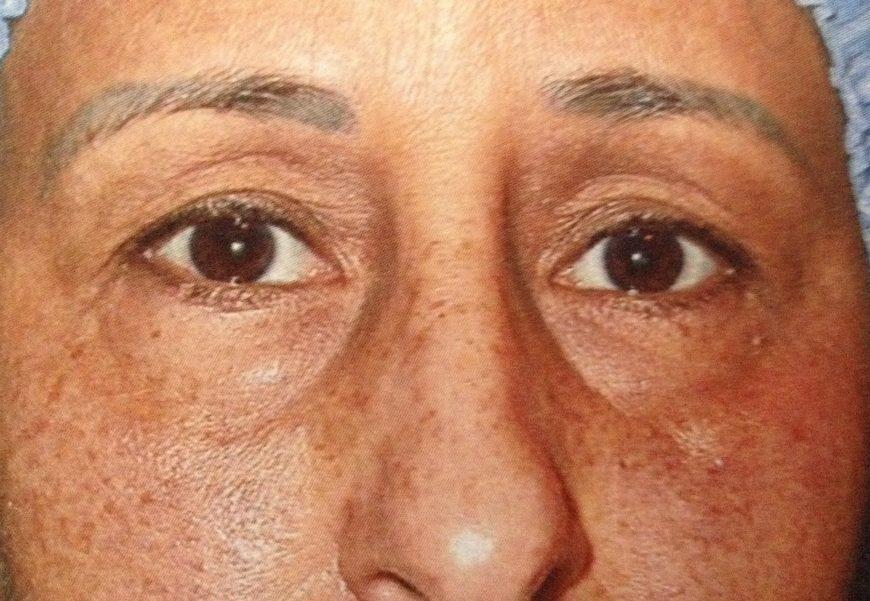 rhinoplastie du nez chirurgie
