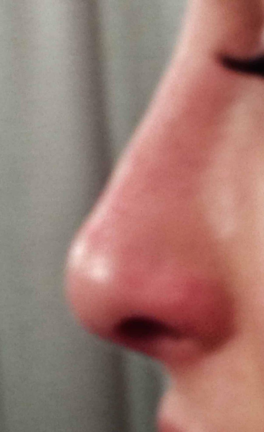 rhinoplastie médicale après