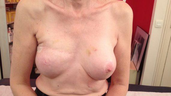 recontruction mammaires après cancer