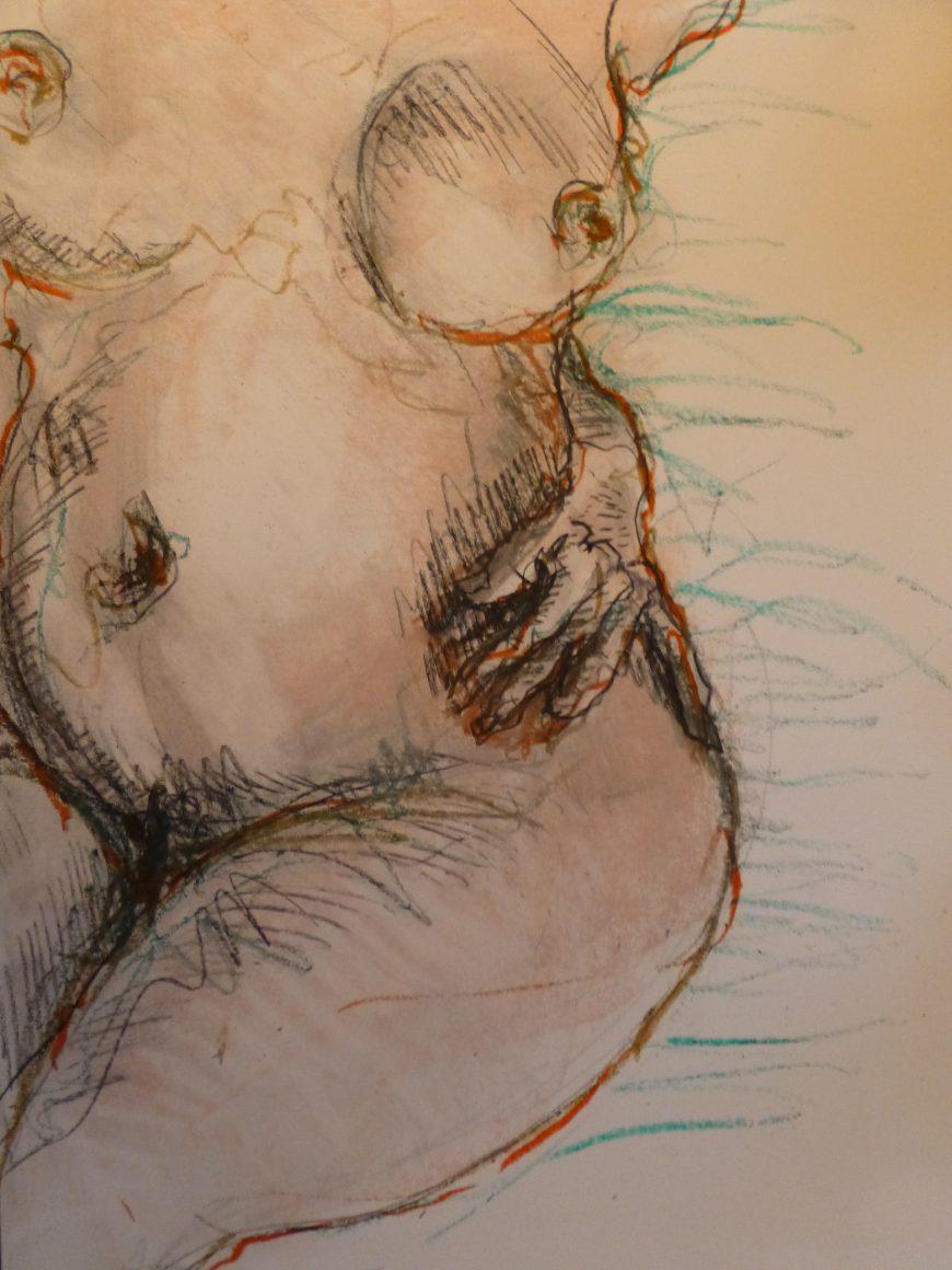 art achirurgie esthétique
