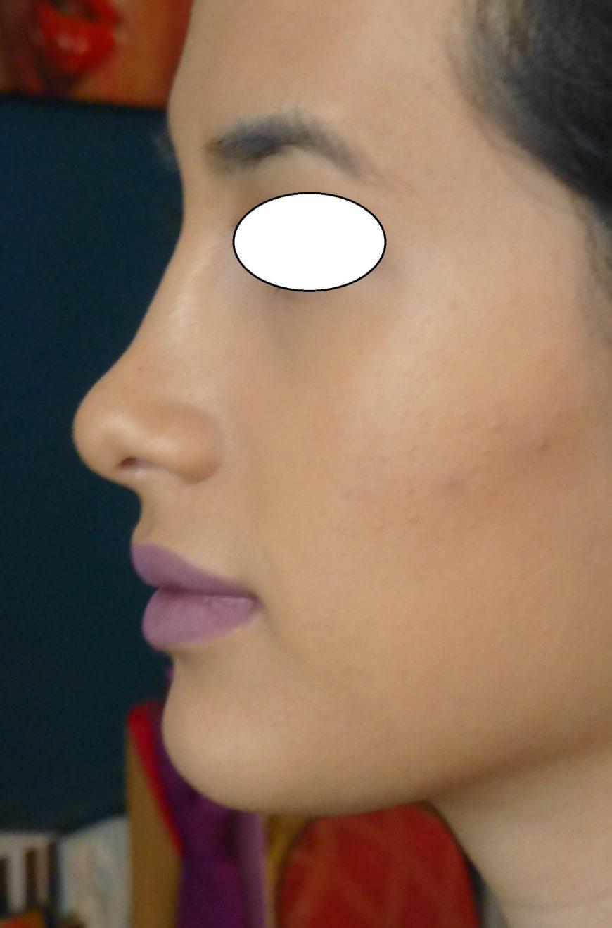 après rhinoplastie du nnez chirurgie esthétique