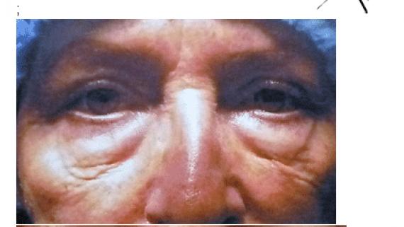 opération des poches des yeux