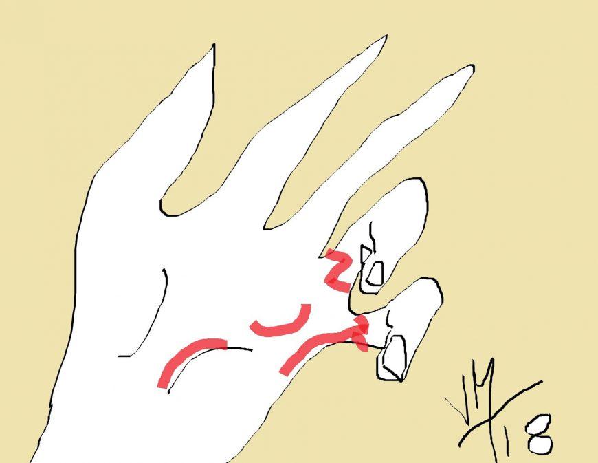 incisions discontinues dans la maladie de dupuytren