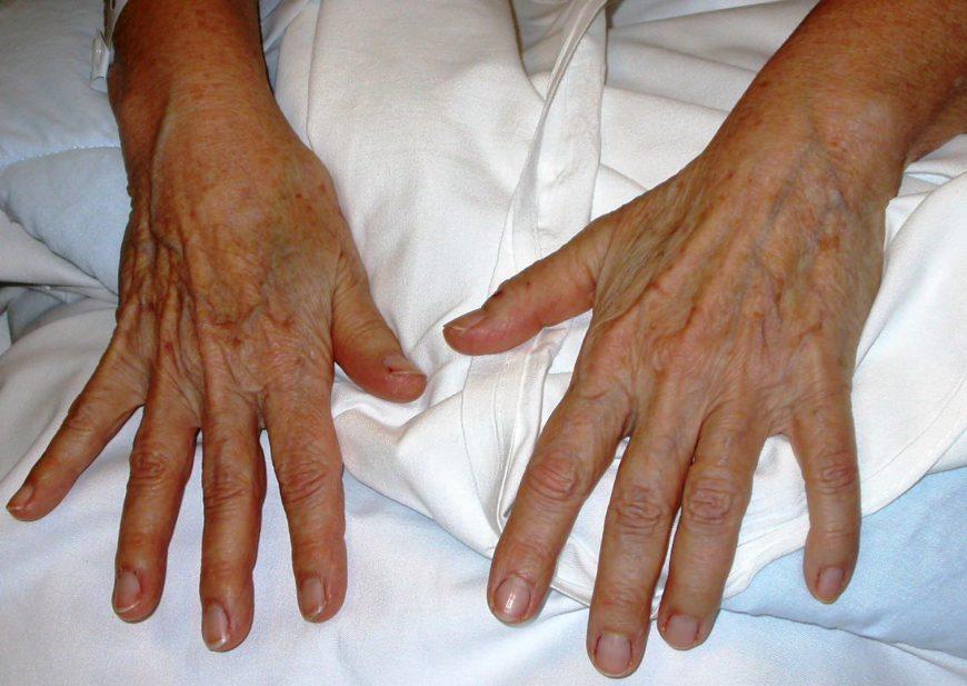 chirurgie de la mainn paris